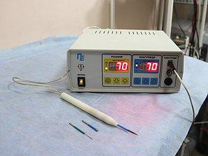 Радионож, преимущества радионожа, пластика короткой уздечки, урологические операции киев